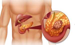 Опухоль поджелудочной железы