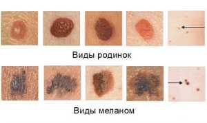 Метастазы меланомы