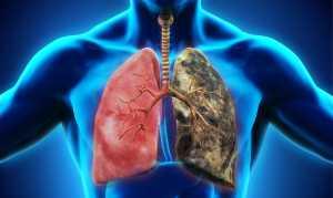 Метастазы в лёгких