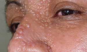 Трихоэпителиома: симптомы, лечение и диагностика