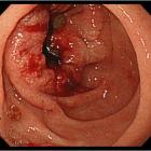 Рак 12-перстной кишки