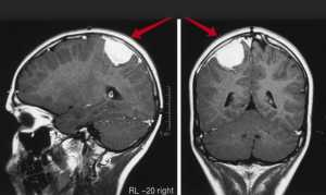 Астроцитома: симптомы, диагностика и лечение