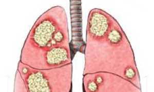 Аденокарцинома: симптомы, прогноз, стадии и лечение