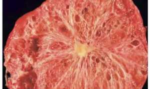 Цистаденома поджелудочной железы