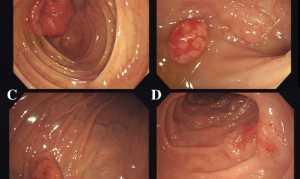 Лимфома желудка