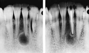 Гранулёма зуба
