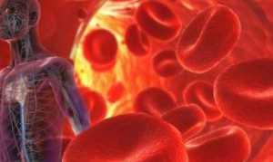 Гемобластозы: диагностика, симптомы и классификация