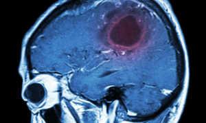 Ангиосаркома: описание, симптомы, лечение и диагностика