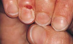 Гранулёма ногтя