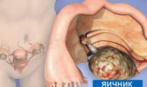 Аденокарцинома яичника