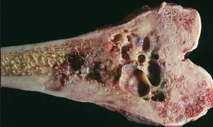 Фибросаркома: фото, симптомы, стадии и лечение