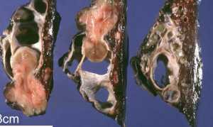 Карциноид: симптомы, лечение, прогноз и диагностика