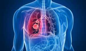 Мезотелиома: симптомы, лечение и прогноз жизни