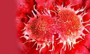 Глюкагонома поджелудочной железы: симптомы, причины и диагностика