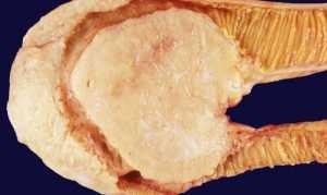 Лимфома кишечника