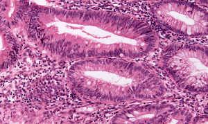 Высокодифференцированная аденокарцинома
