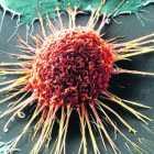 Инвазивный рак
