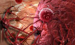 АФП онкомаркер
