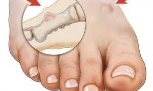 Остеоид-остеома: симптомы, лечение и диагностика