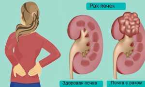 Ангиолипома: симптомы, лечение и прогноз