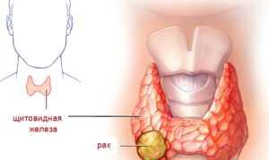 Папиллярный рак щитовидной железы