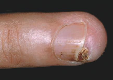 Кератоакантома ногтя