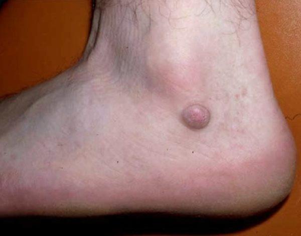 Дерматофиброма у человека