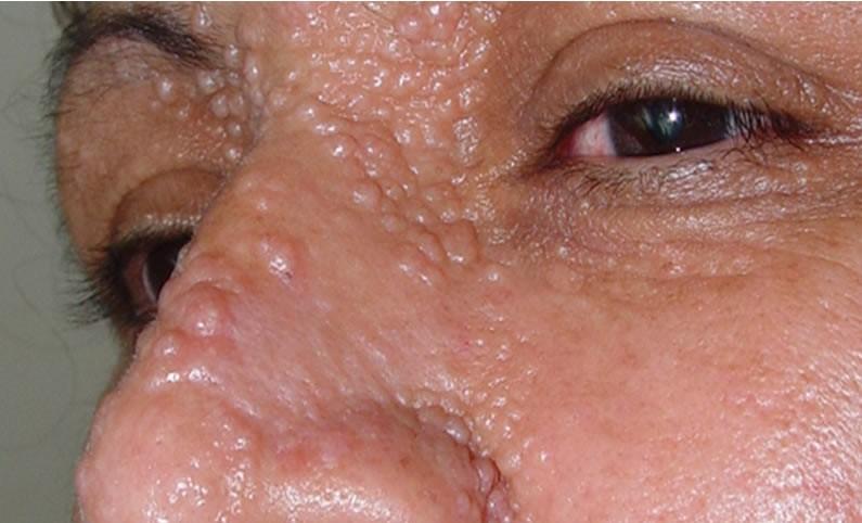 Трихоэпителиома на лице