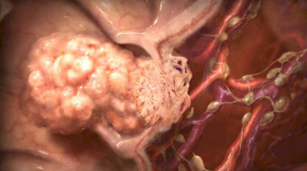 Раковая опухоль в теле