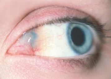 Лимфангиома глаза