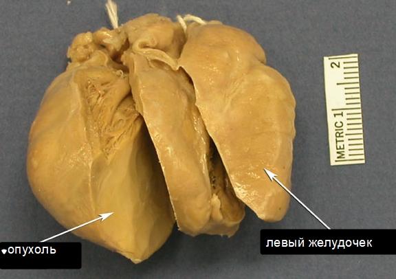 Рабдомиома сердца