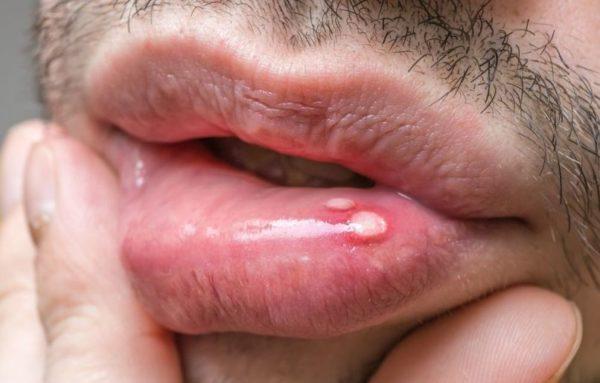Папиллома рта