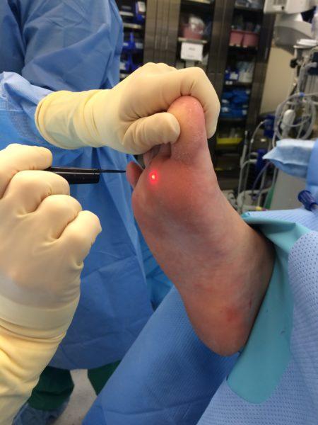 Лечение папиллом лазером
