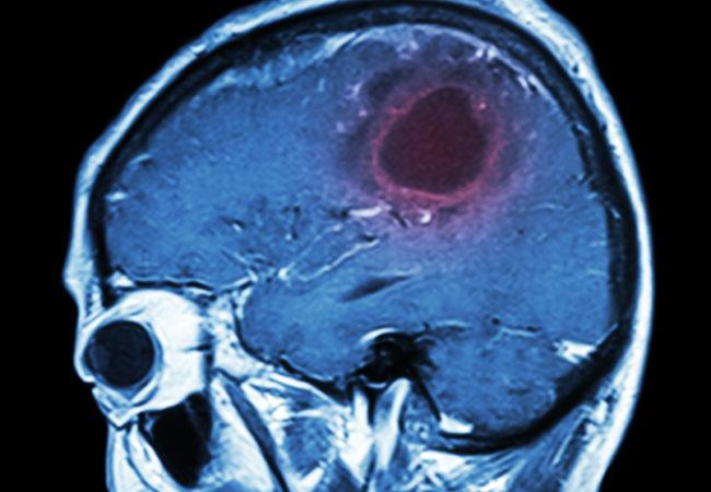 Опухоль в головном мозге