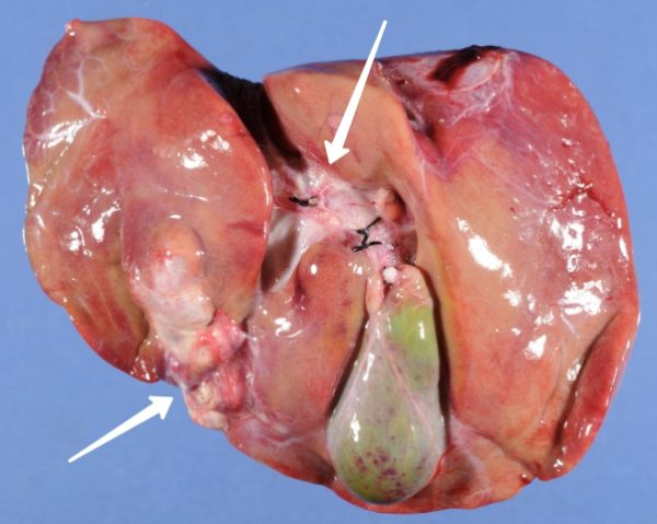 Гепатобластома человека