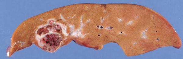 Гепатобластома на срезе печени