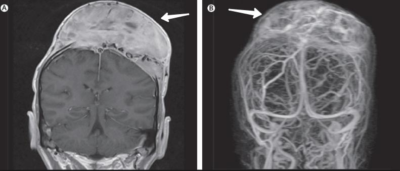 Плазмоцитома человека