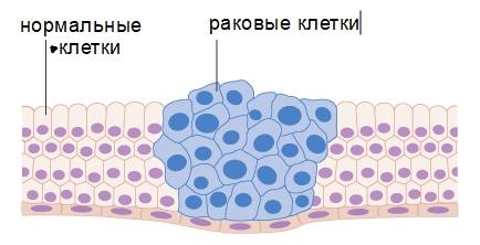 Раковые клетки отличаются от нормальных