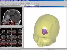 3д моделирование раковой опухоли