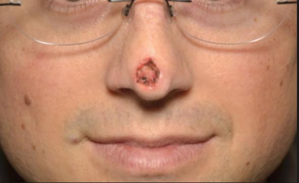 Рак пазухи носа