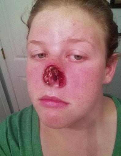 Рак носа с разрушением тканей