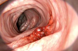Раковая опухоль в кишечнике