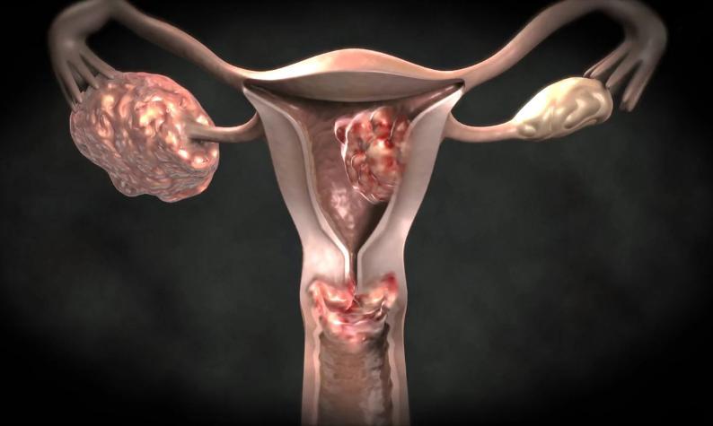 Рак матки и яичника