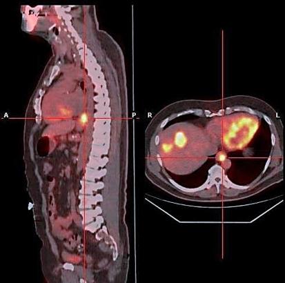Радиоизотопная томография