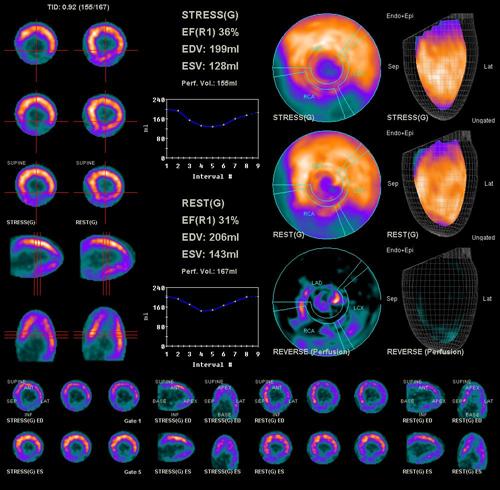 Изотопная томография сердца