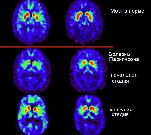 Радиоизотопное исследование болезни Паркинсона