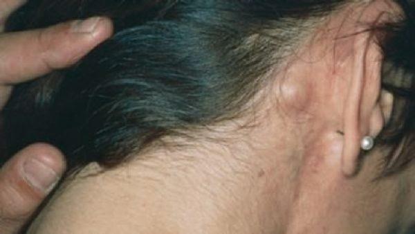 Увеличение лимфатических узлов