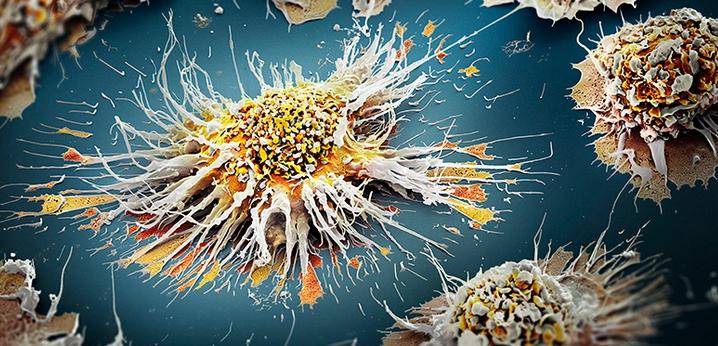 Трансформация клетки в раковую
