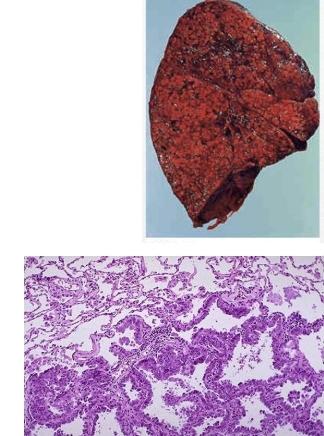 Бронхиоальвеолярный рак