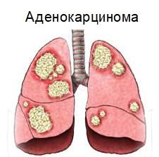 Аденокарцинома лёгких